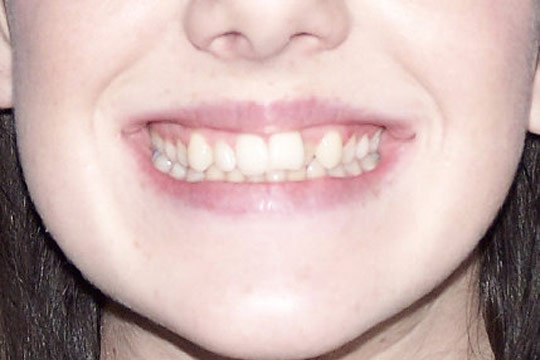 Crossbite case study 1 - before