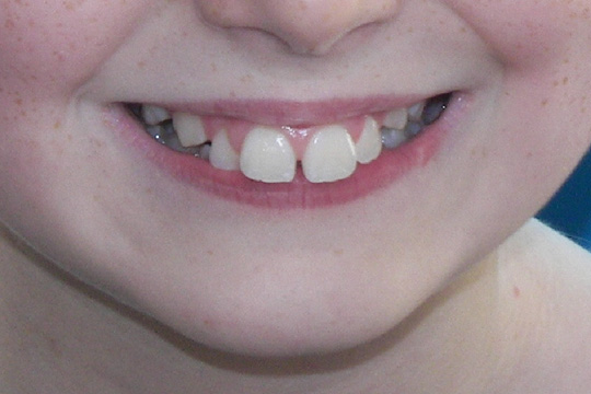 Prominent teeth case study 1 - before