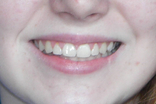 Prominent teeth case study 1 - after