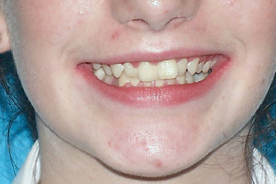 Crowded teeth case study 1 - before