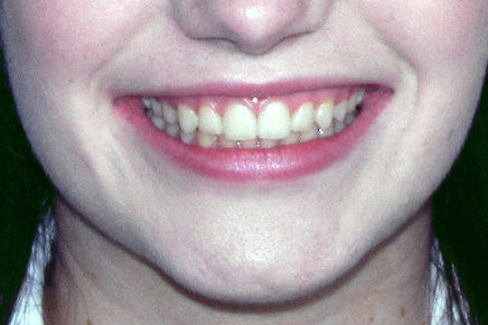 Crowded teeth case study 1 - after