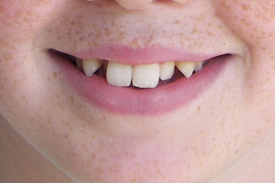 Pointed teeth case study 1 - before