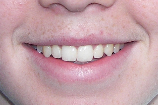Pointed teeth case study 1 - after