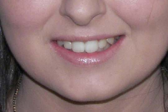 Pointed teeth case study 2 - after