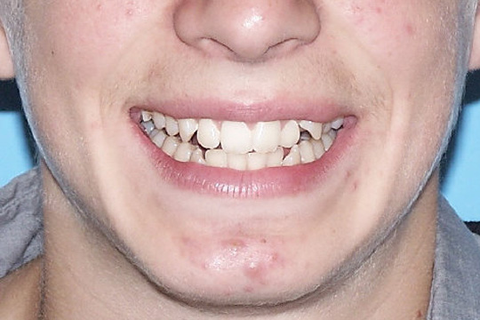 Crowded teeth case study 2 - before