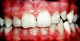 Mild orthodontic treatment