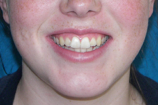 Prominent teeth case study 2 - after