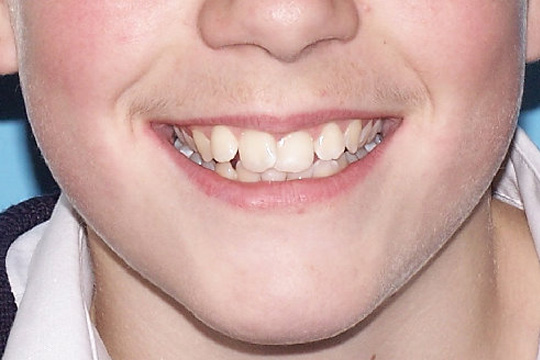 Curly teeth case study 2 - before
