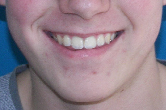 Curly teeth case study 2 - after