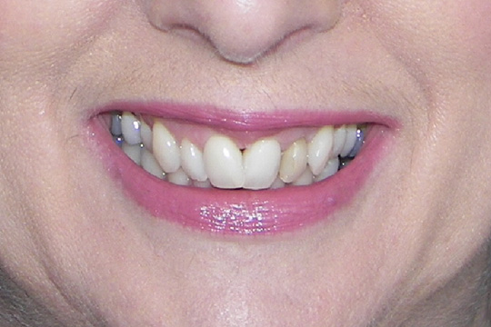 Curly teeth case study 1 - before