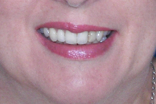 Curly teeth case study 1 - after
