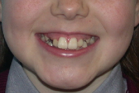 Prominent teeth case study 2 - before